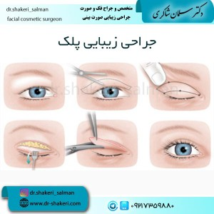 جراحی-زیبایی-پلک-1