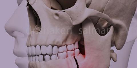 درمان شکستگی های استخوان صورت