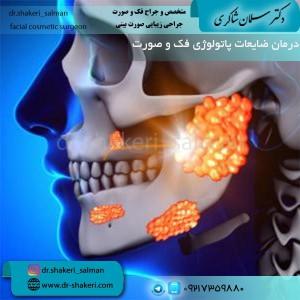 درمان ضایعات پاتولوژی فک و صورت