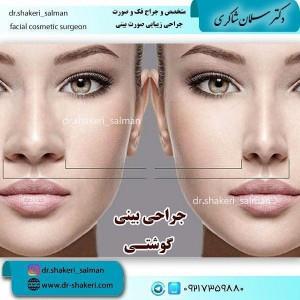 جراح بینی شیراز