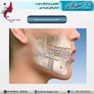 متخصص و جراح فک و صورت