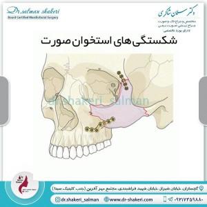 شکستگی های استخوان صورت