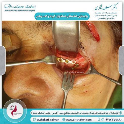 بازسازی شکستگی استخوان گونه و کف چشم 1