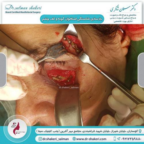بازسازی شکستگی استخوان گونه و کف چشم 3