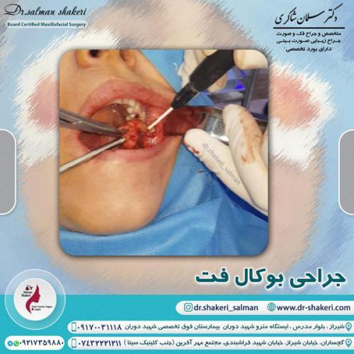 جراحی بوکال فت 3