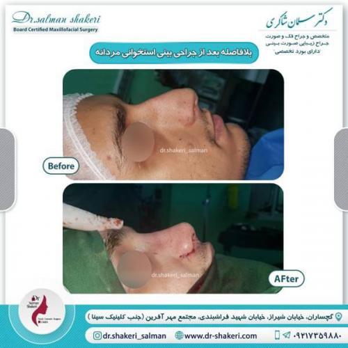 جراحی بینی 10