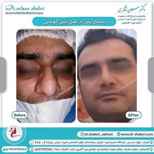 جراحی بینی 101