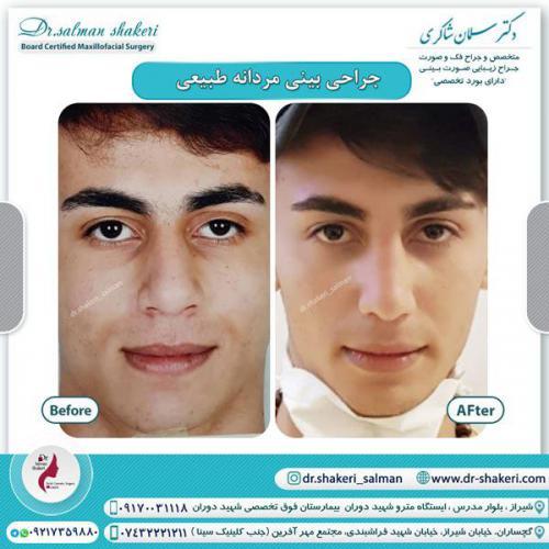 جراحی بینی 112