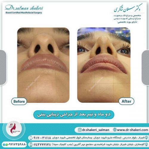 جراحی بینی 121
