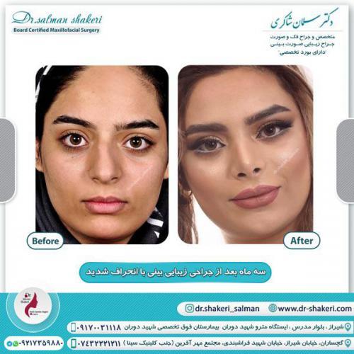 جراحی بینی 123