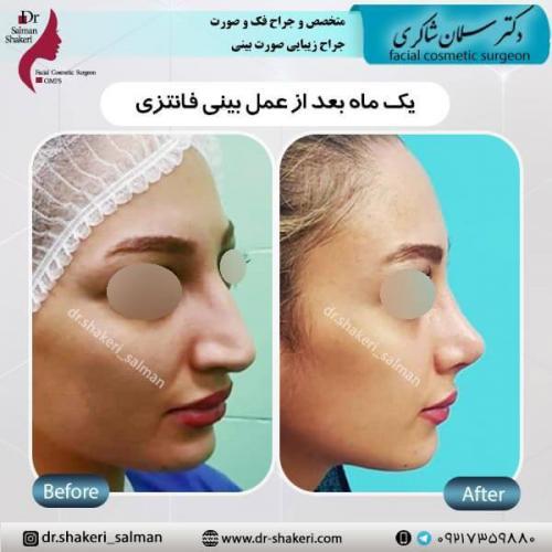 جراحی بینی 2