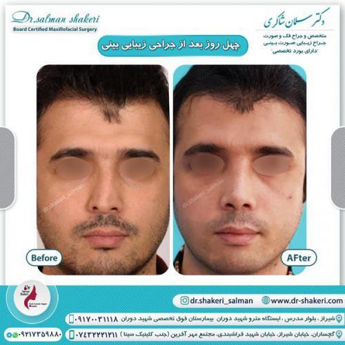 جراحی بینی 39