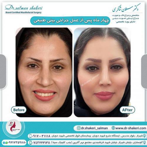 جراحی بینی 42