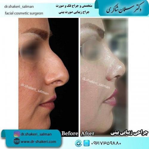 جراحی بینی 54 (1)