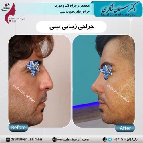 جراحی بینی 6