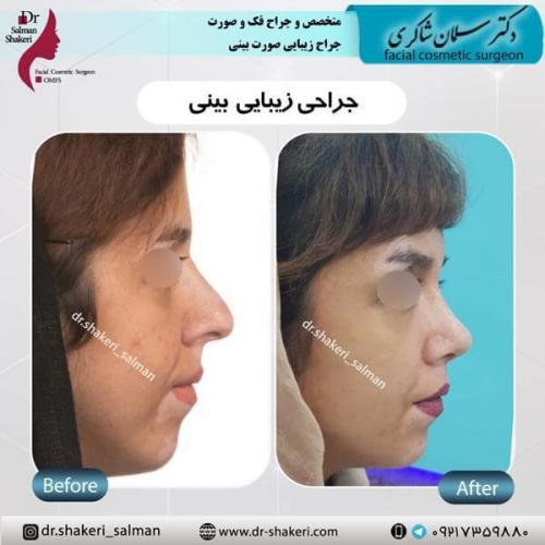 جراحی بینی 7 (1)