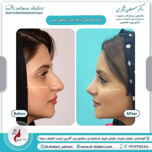 جراحی بینی 9