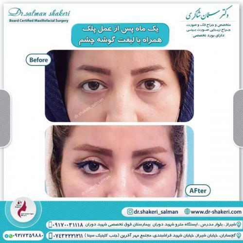 جراحی پلک همراه با لیفت گوشه چشم 11
