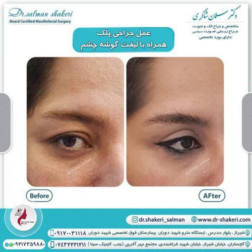 جراحی پلک همراه با لیفت گوشه چشم 14 (1)