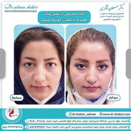 جراحی پلک همراه با لیفت گوشه چشم 9