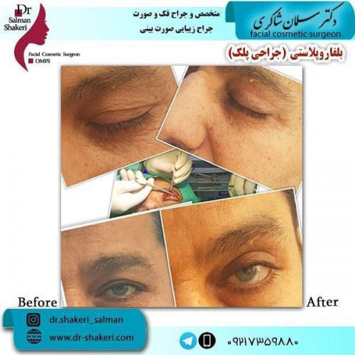 جراحی پلک 5