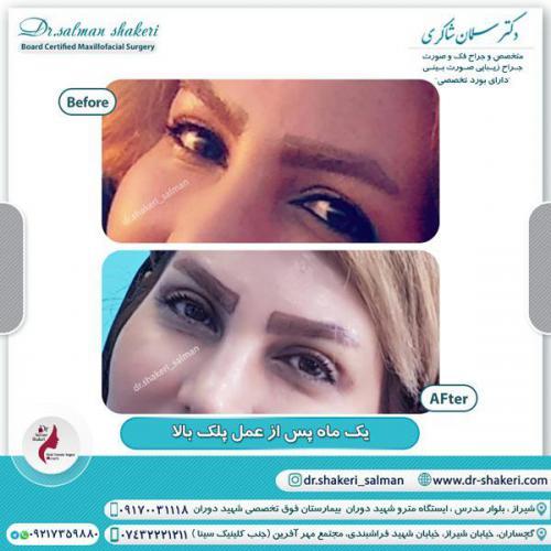 جراحی پلک 8