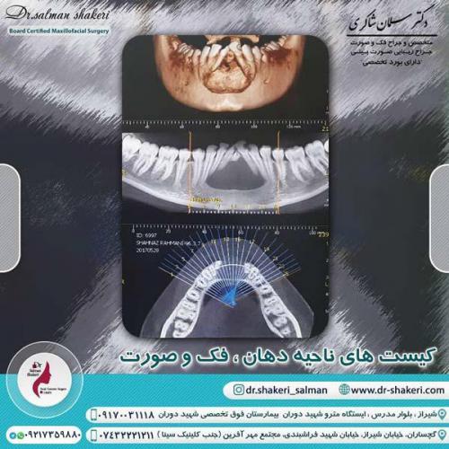کیست های ناحیه دهان و فک و صورت